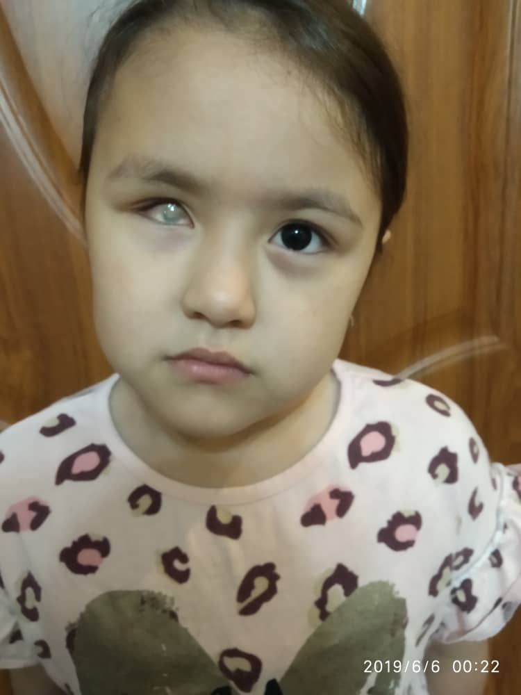 Маленькая Сумая может ослепнуть. Ей нужна наша помощь