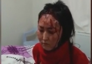 Девушку из Кыргызстана избили в Турции и грозили отрезать ей язык